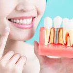 دوره تخصصی ایمپلنت دندانی (300 ساعت عملی و تئوری بمدت 3 ماه)