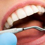 دستیار دندانپزشک مقدماتی (300 ساعت عملی و تئوری بمدت 3 ماه)
